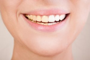 Teeth Whitening Solutions for you