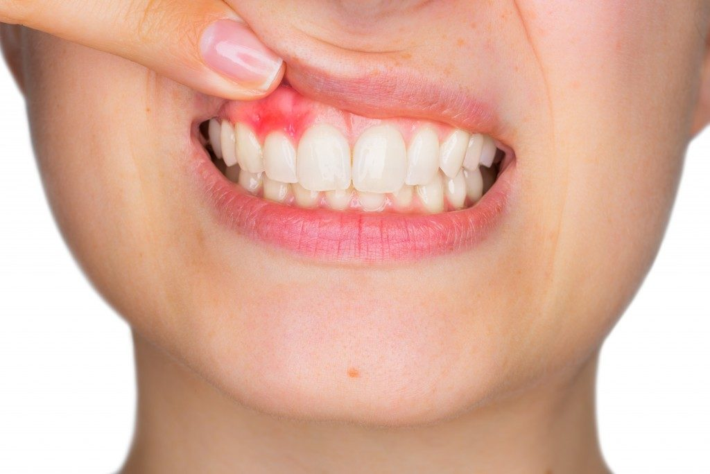 Person showing her inflamed gums