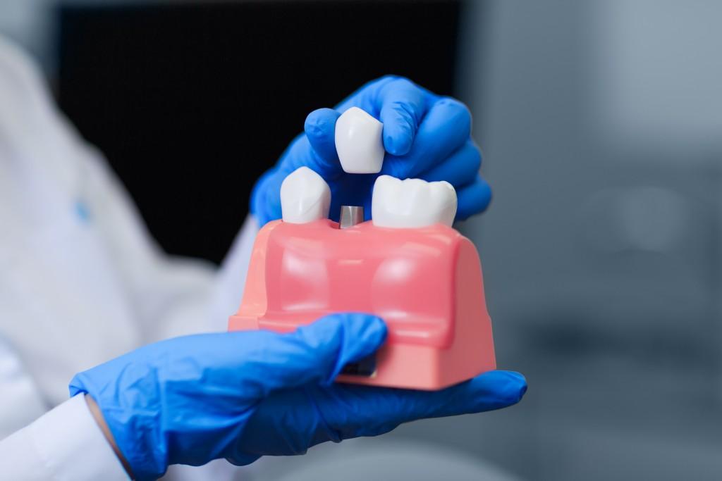 dentist showing a model of dental implant