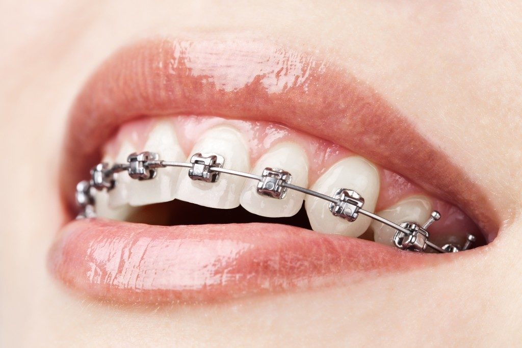 braces on a woman's teeth