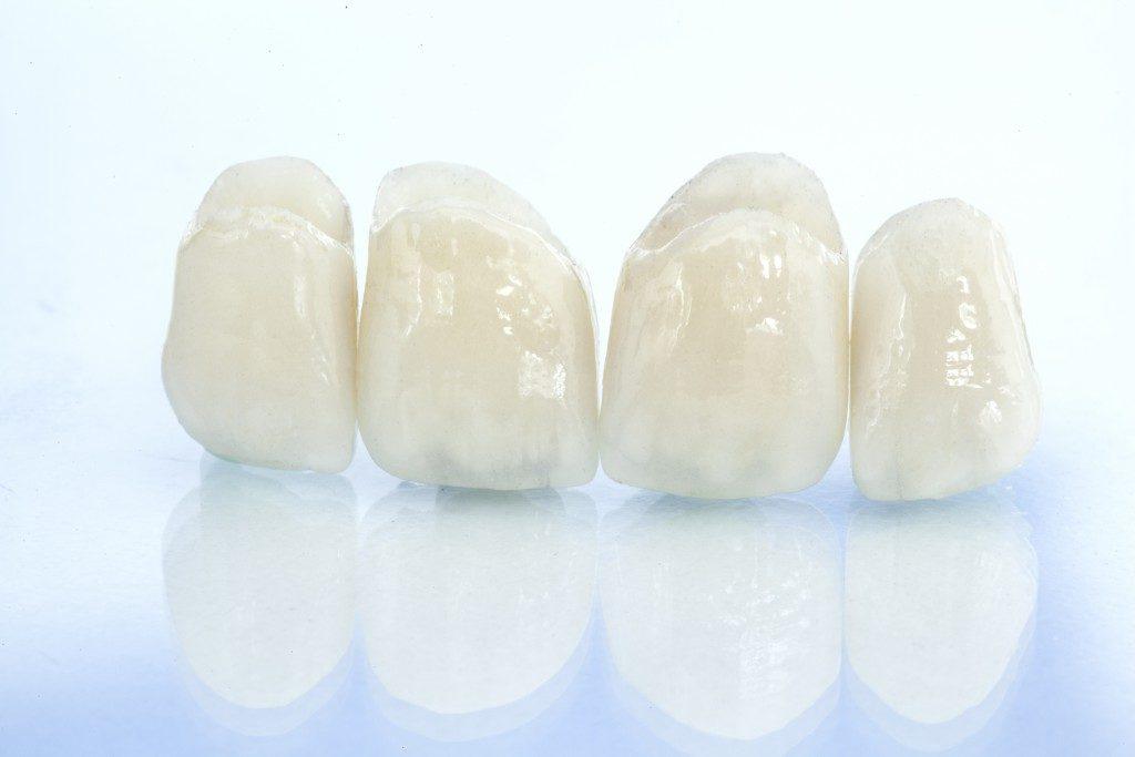 ceramic porcelain teeth
